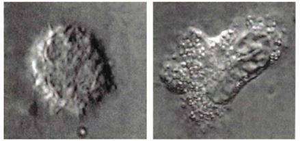 image of neutrophils becoming activated and releasing toxic mediators of inflammation