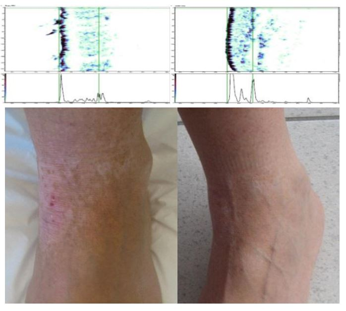 before/after photo of a patient's foot with atopic dermatitis who was treated with an elimination and rotation diet after identifying incompatible foods with the Alcat Test