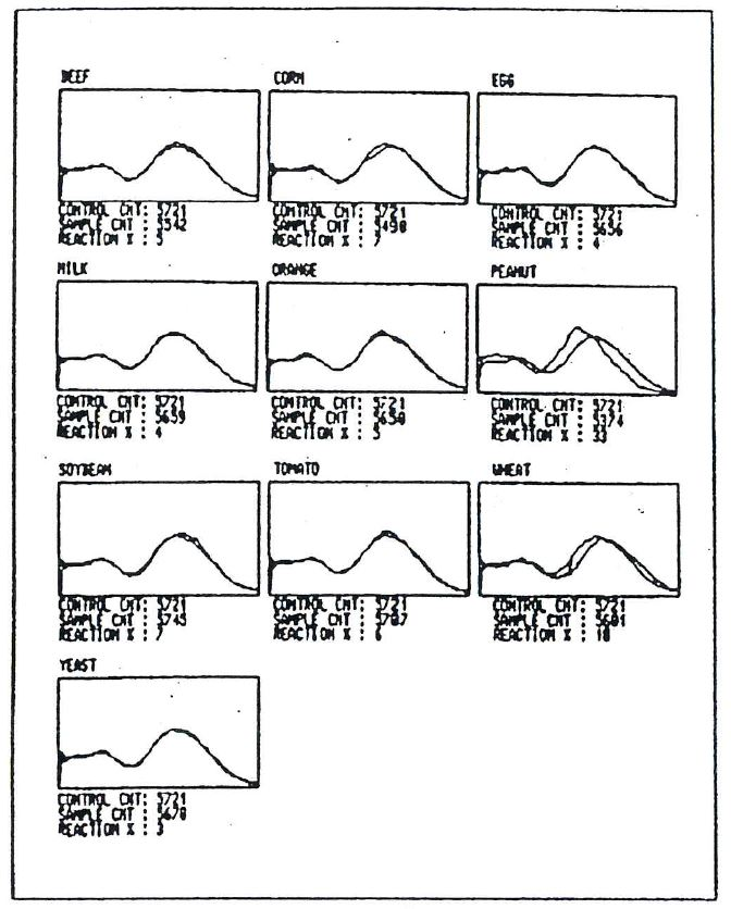Alcat Test graphic histogram results for patient 2