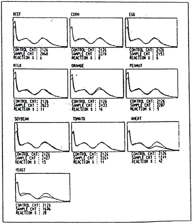 Alcat Test graphic histogram results for patient 3